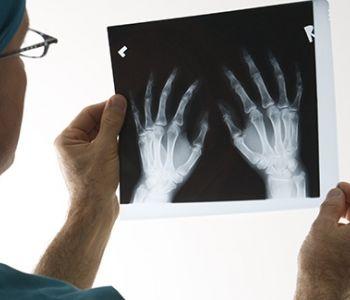 Tribunal Regional Federal garante auxílio-acidente a mecânico com lesão no punho