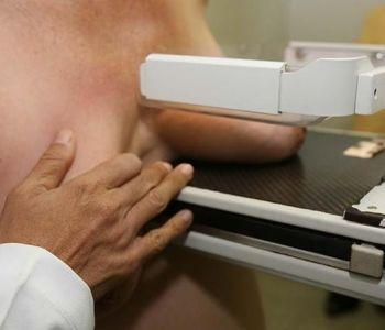 Todas as mulheres a partir dos 40 anos de idade têm direito de realizar exame mamográfico pelo SUS